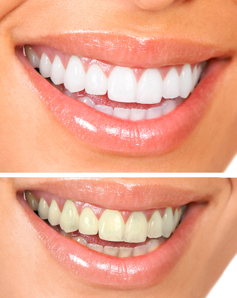 Professional And Safe Teeth Whitening Results Turn To Your