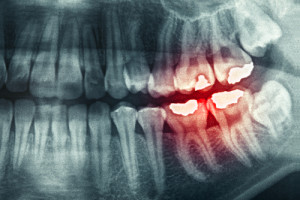 toothache-pella