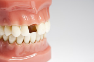 Why You Should Replace Your Missing Teeth