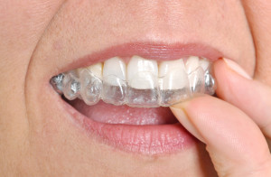 Straighten Your Teeth All About Invisalign