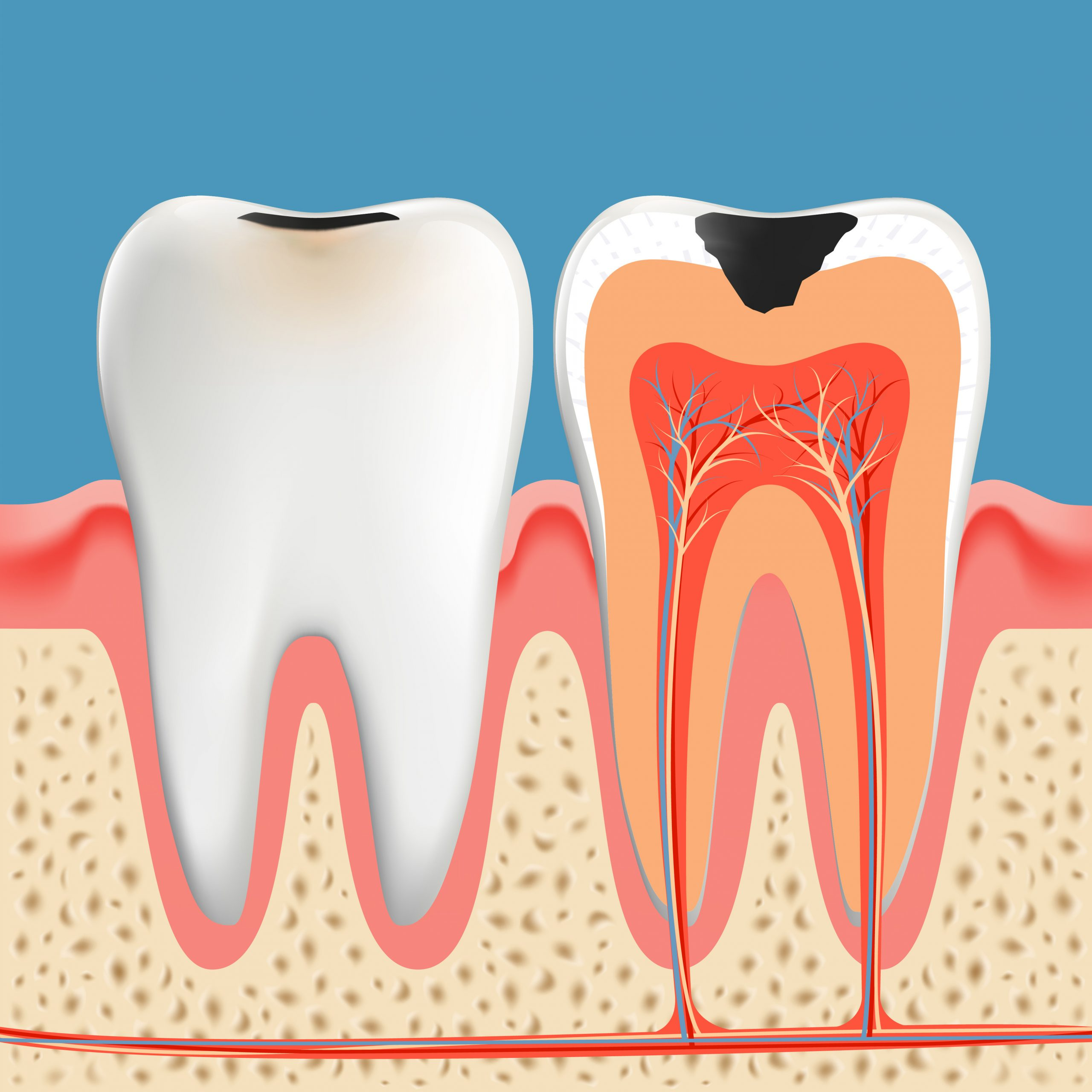 Tooth decay anatomy poster. Enamel and dentin of teeth caries Infection. Vector illustration