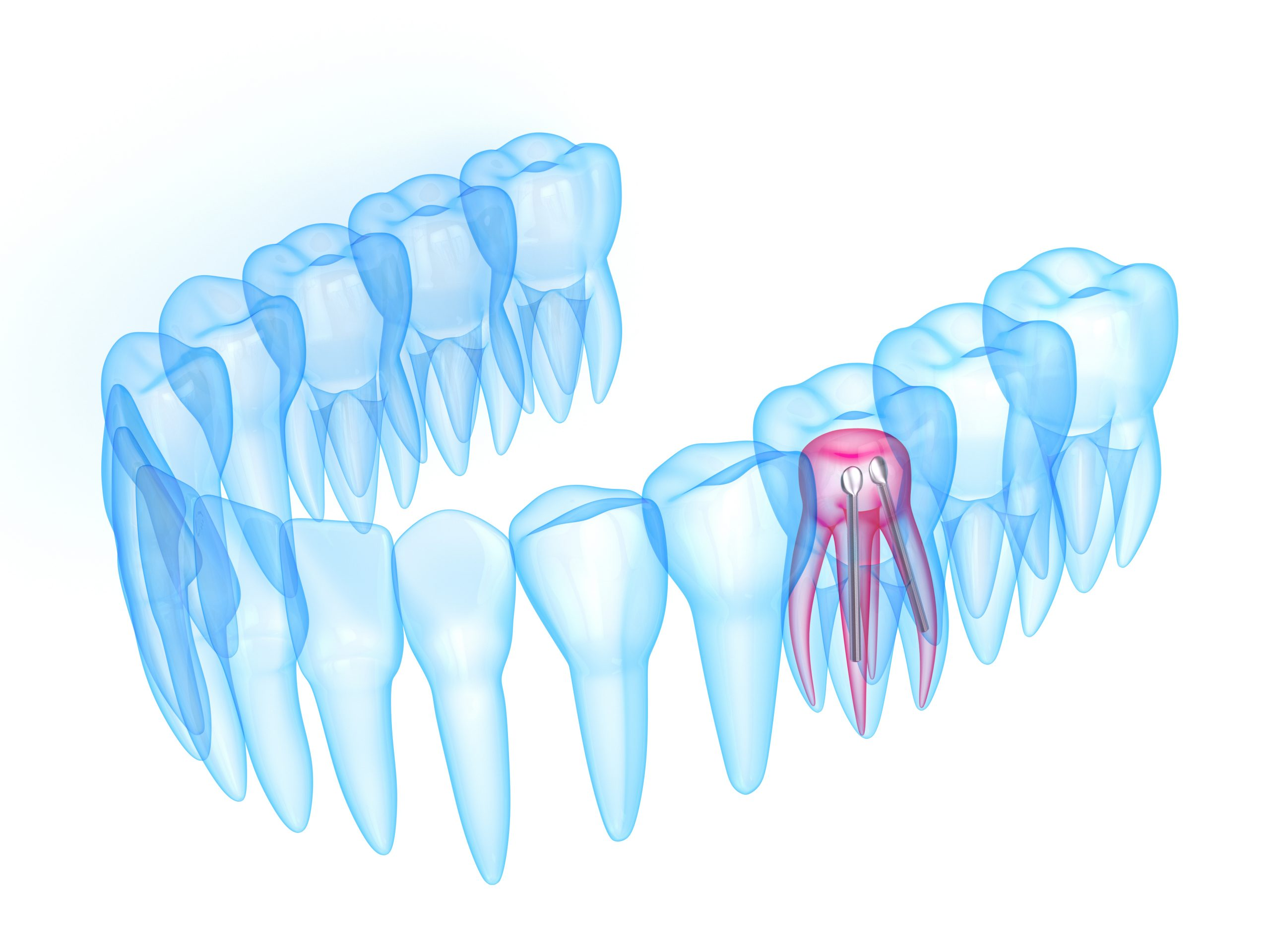 3d render of x-ray toothing with stainless steel dental post over white background. Endodontic treatment concept